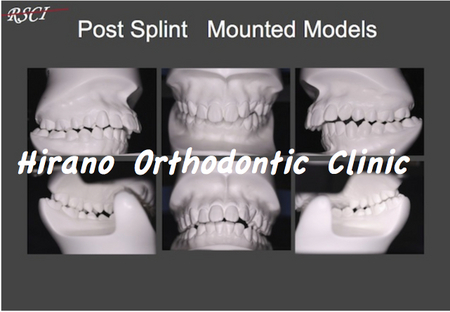 Post-Splint-Models.jpg