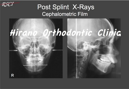 Post-Splint-X-ray.jpg