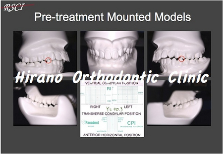 Pre-Tre-Models.jpg