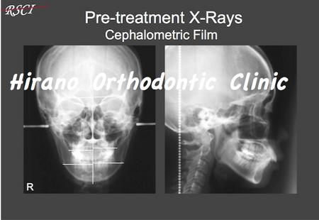 Pre-Tre-X-ray.jpg