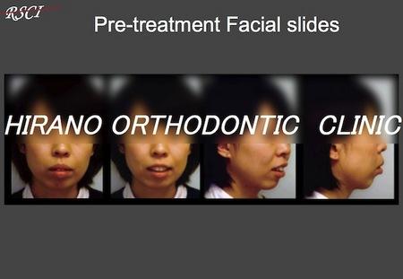 S-Pre-Facial.jpg
