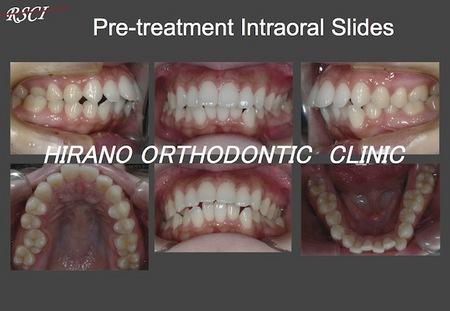 S-Pre-Tre-Oral.jpg