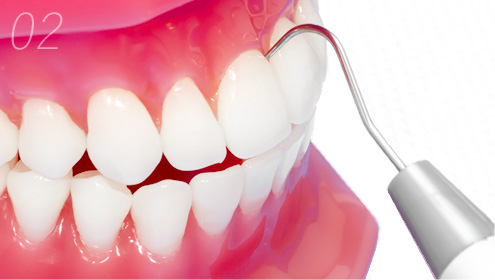 歯肉など歯周組織の健康